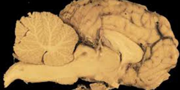 neuropatologia_2