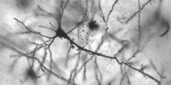 pyramidal_hippocampal_neuron_40x