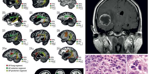 119-neurooncologia-jbruna-def