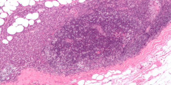 breast_carcinoma_in_a_lymph_node