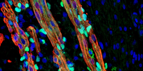 Regenerative-Medicine2
