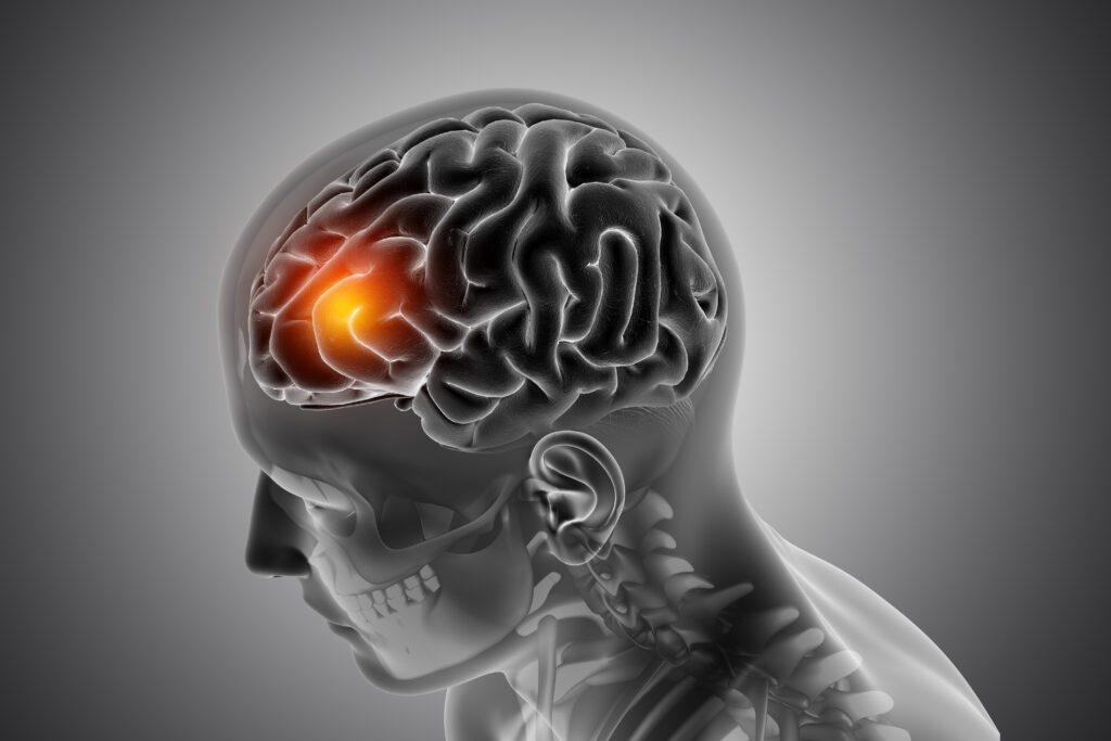 3D render of a male medical figure with front of the brain highlighted