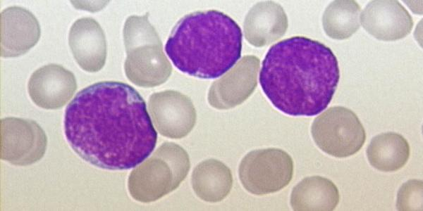 all_-_peripherial_blood_-_diagnosis_-_01