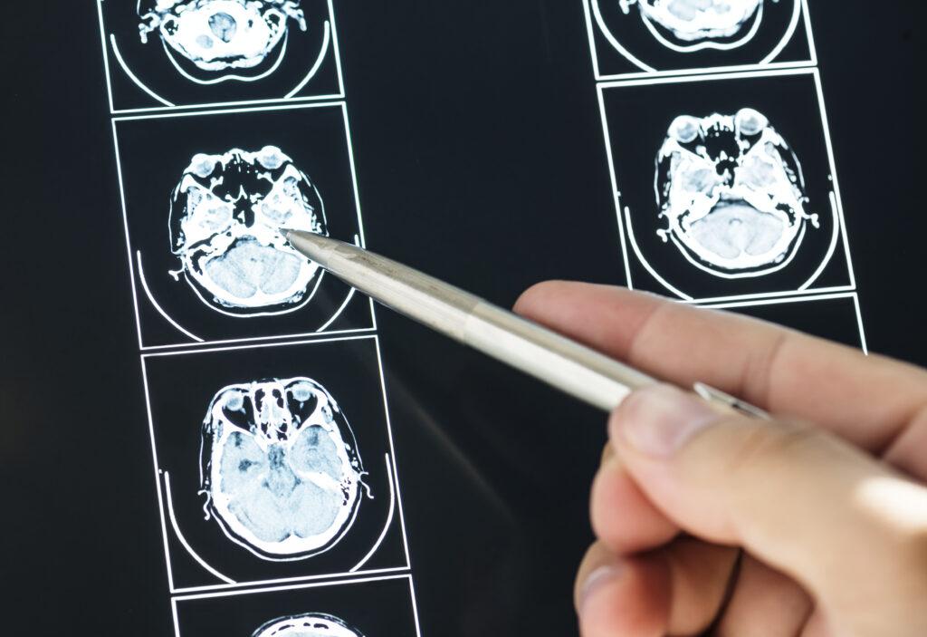 Closeup of brain MRI scan result